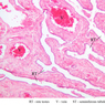 B79, Testis (Rete Testis), 10x Labeled (H&E)