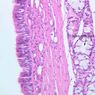 A76, Trachea, 20x Labeled (H&E)